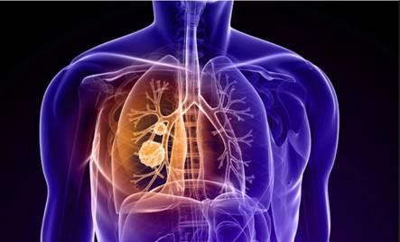漂洋过海寻找一线生机——肺腺癌患者赴美参加临床试验