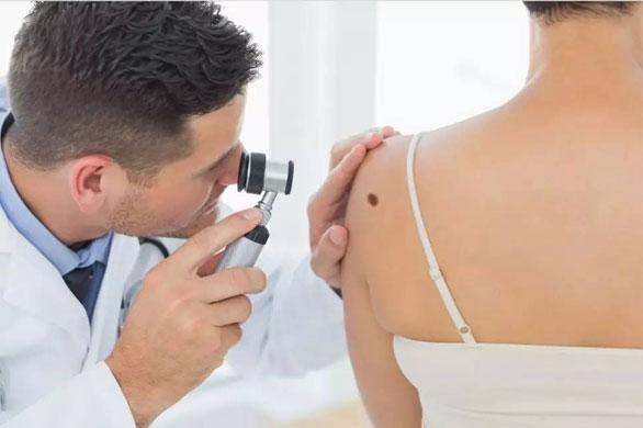 """知晓这些易癌变痣,掌握""""ABCDE""""原则,肉眼判断黑色素瘤!"""