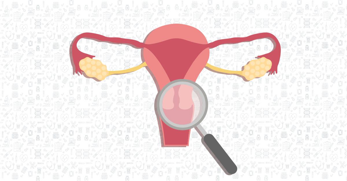 还不清楚宫颈癌、HPV、TCT之间的关系,赶紧了解一下~