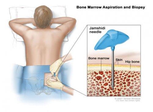 多发性骨髓瘤患者的艰辛抗癌之路