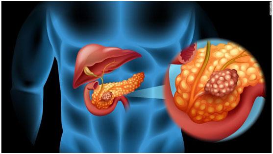 美国精准医疗肿瘤专家远程会诊胰腺癌患者