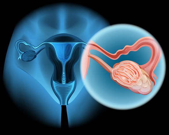 卵巢癌手术后远程会诊寻求第二诊疗意见
