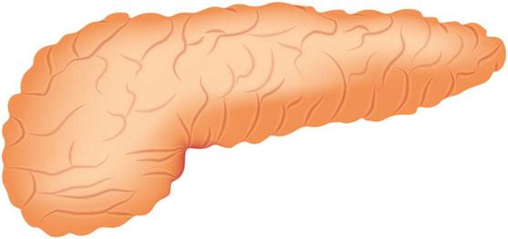 胰腺脂肪可能引发糖尿病?!这样吃饭可以帮你预防
