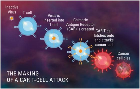 CAR-T细胞治疗,让这位73岁的淋巴瘤患者回到正常生活