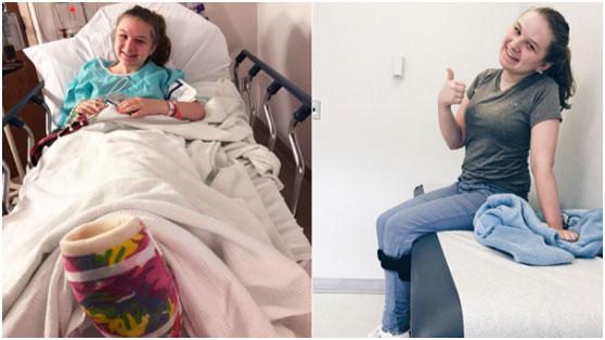 从7岁到17岁,这种无法治愈的疾病非但没有打败她,反而让她活出与众不同