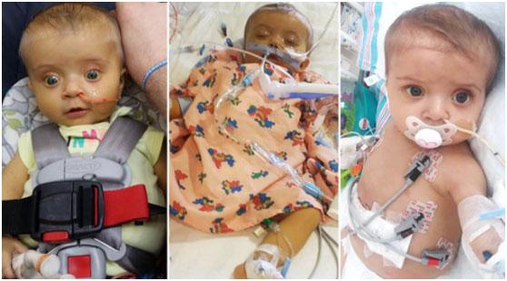 先天胆道闭锁的她成功活了下来,恩人是一名59岁的双器官捐赠者