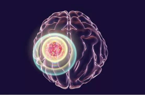 无需手术,AI识别脑胶质瘤基因突变,准确率超过97%