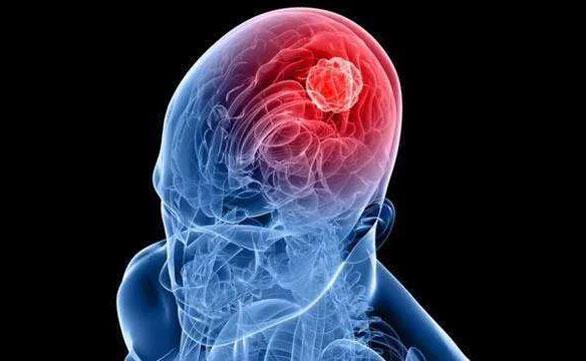 脑癌治疗新突破丨好医友TRI Singula,让脑癌个性化治疗梦想成真