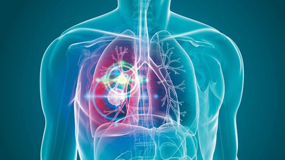 肺癌患者EGFR罕见突变,应该如何治疗?
