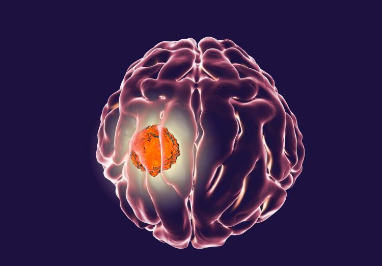 新疗法治疗胶质母细胞瘤,有望延长患者寿命