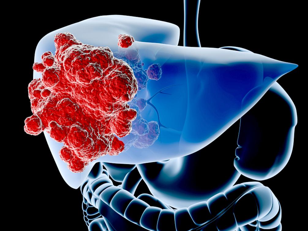 肝癌靶向治疗耐药,有没有延缓的办法呢?