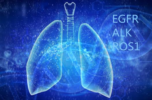 70%非小细胞肺癌将有靶向药可用,这10个靶向药一定要记住!