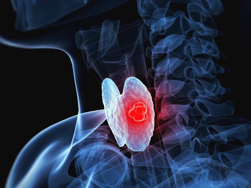 """人体的""""发动机""""——甲状腺出了问题,该怎么办?"""