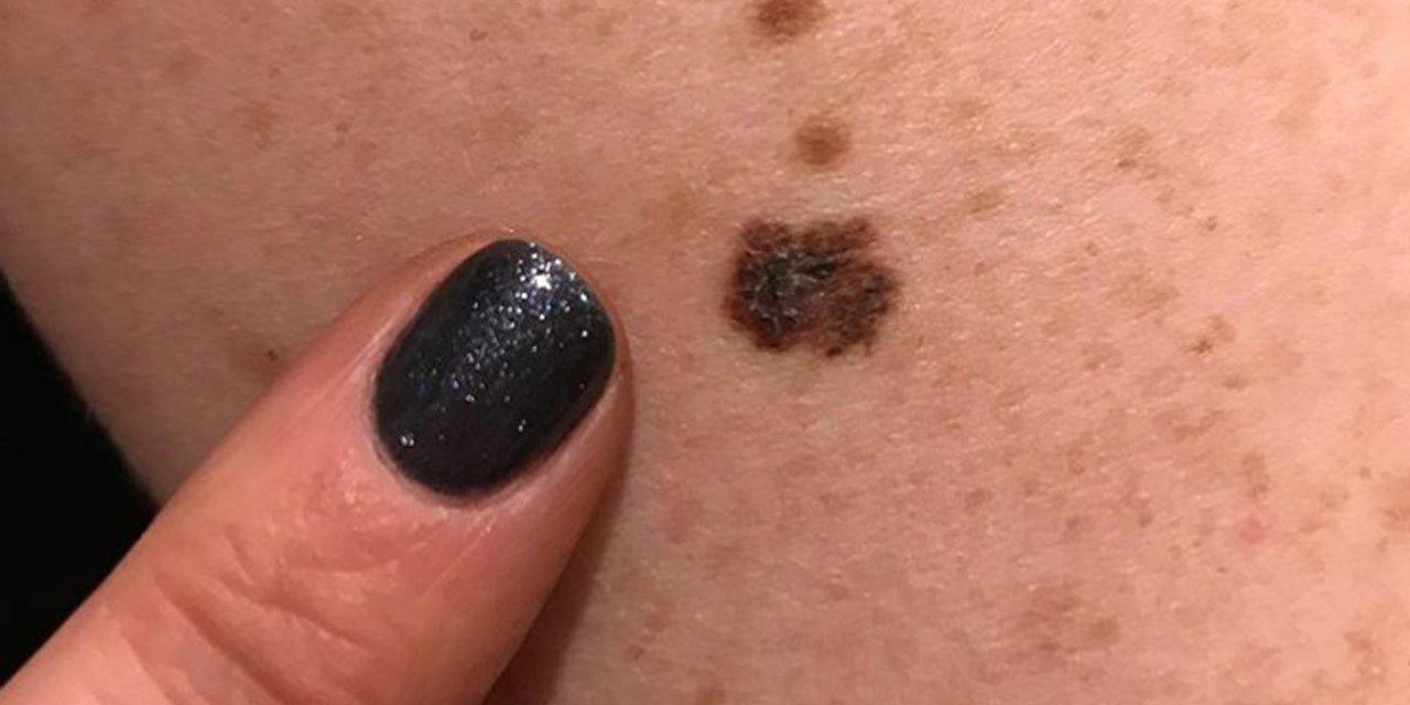 黑色素瘤 (9).jpg