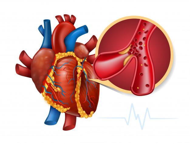 心梗+心衰,这些处理措施和治疗方法你都清楚吗?