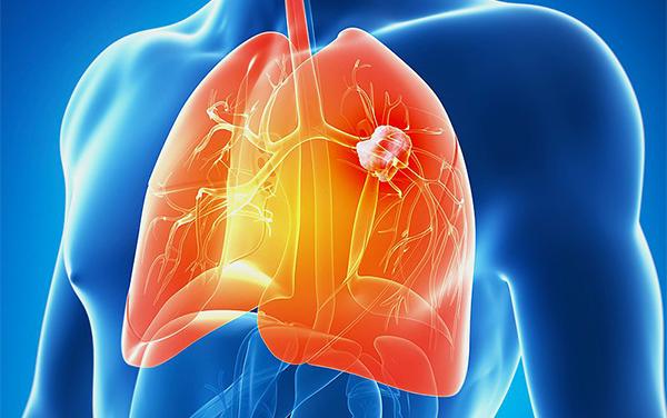 2020年肺癌领域的28件大事,肺癌患者必须知道!