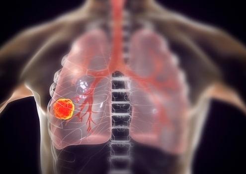 肺癌靶向治疗副作用多,这些药处理方法建议收藏!
