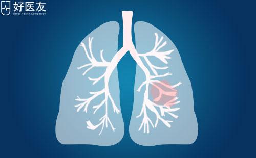 肺癌患者怎么吃?肺癌病人最该吃的一类蔬菜原来是它!