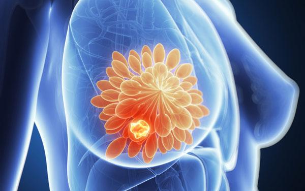 换药一个半月,肿瘤变小了!这款乳腺癌神药,神在哪?