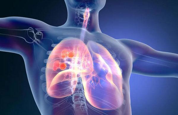 难治性肺癌突变患者,有望迎来首个口服靶向疗法