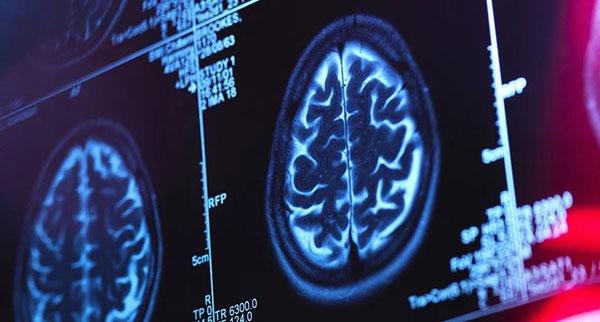 AI早期诊断老年痴呆,靠谱吗? 世界阿尔茨海默病日